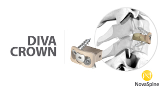 Preview Diva Crown