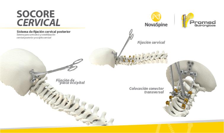 Sub menu SOCORE Cervical-01