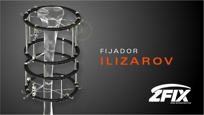 Prev Fijador Ilizarov-02