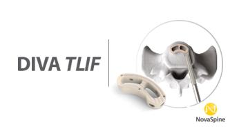 Preview DIVA TLIF