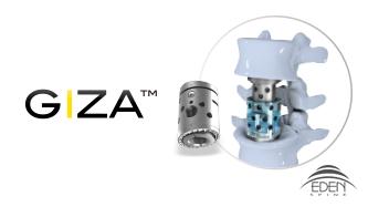 Preview GIZA