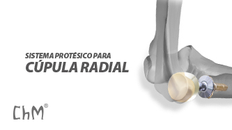 Preview Prótesis de Cúpula Radial