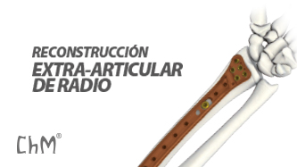 Preview Radio Extrarticular ChLP