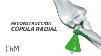 Preview Reconstrucción Cúpula Radial