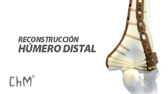 Preview Reconstrucción Húmero Distal