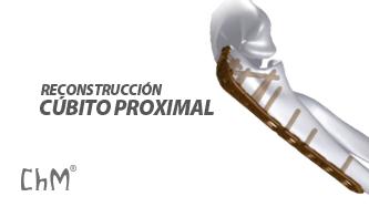 Preview Reconstrucción de Olecranon