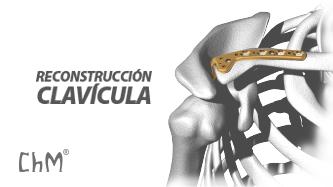 Preview Reconstrucción para Clavícula