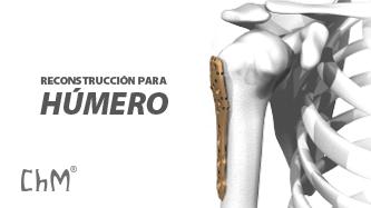 Preview Reconstrucción para Húmero Proximal