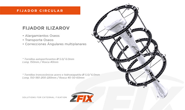 sub fijador ilizarov-01