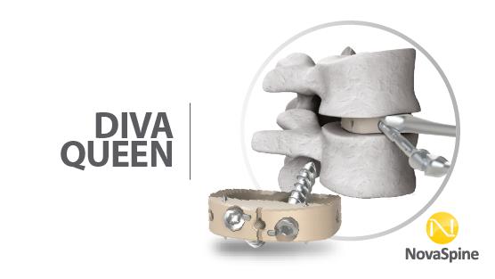 Preview DIVA QUEEN-02