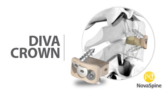Preview Diva Cervical -02