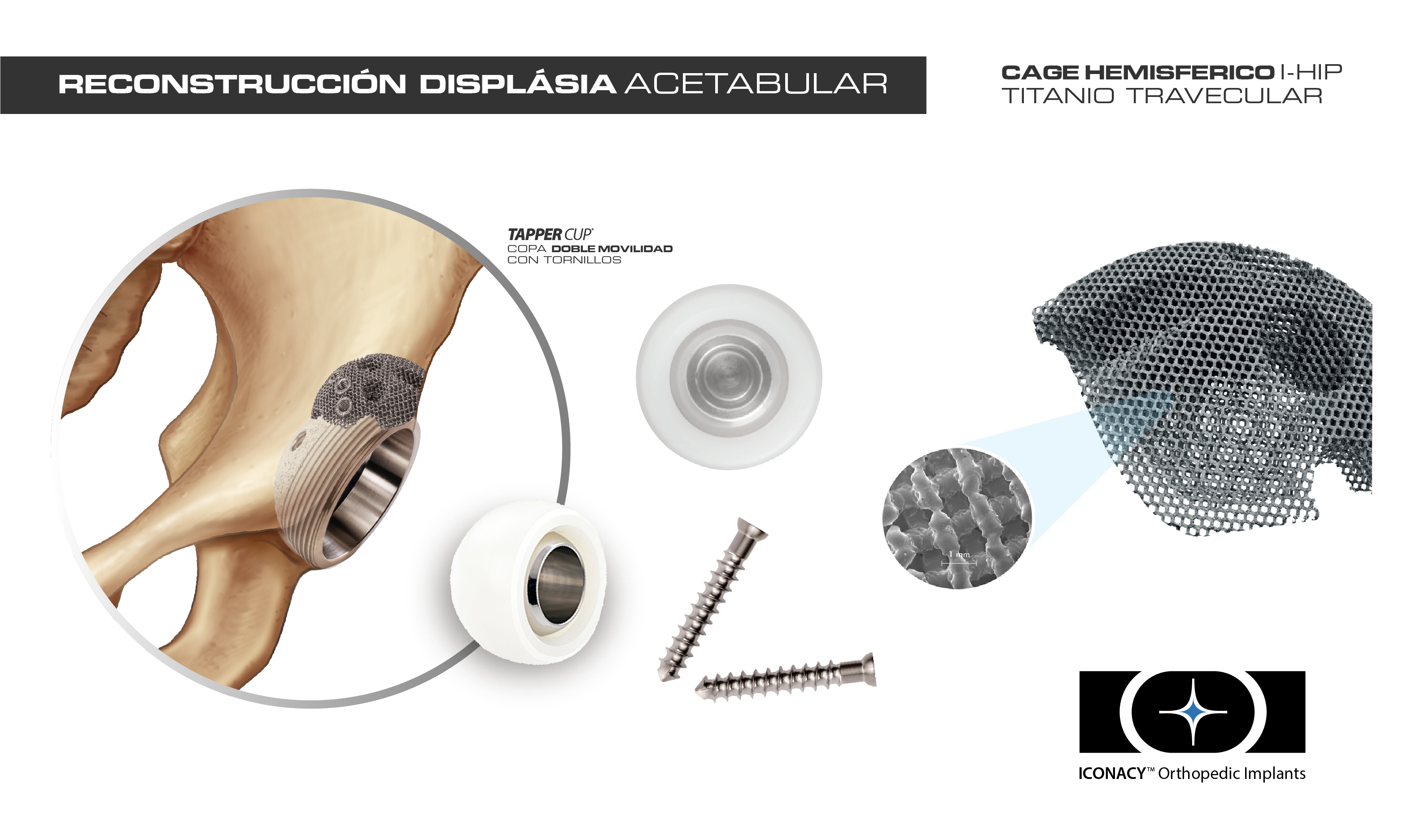 Sub menu Acetabulo displasico - Iconacy - Integrip-01