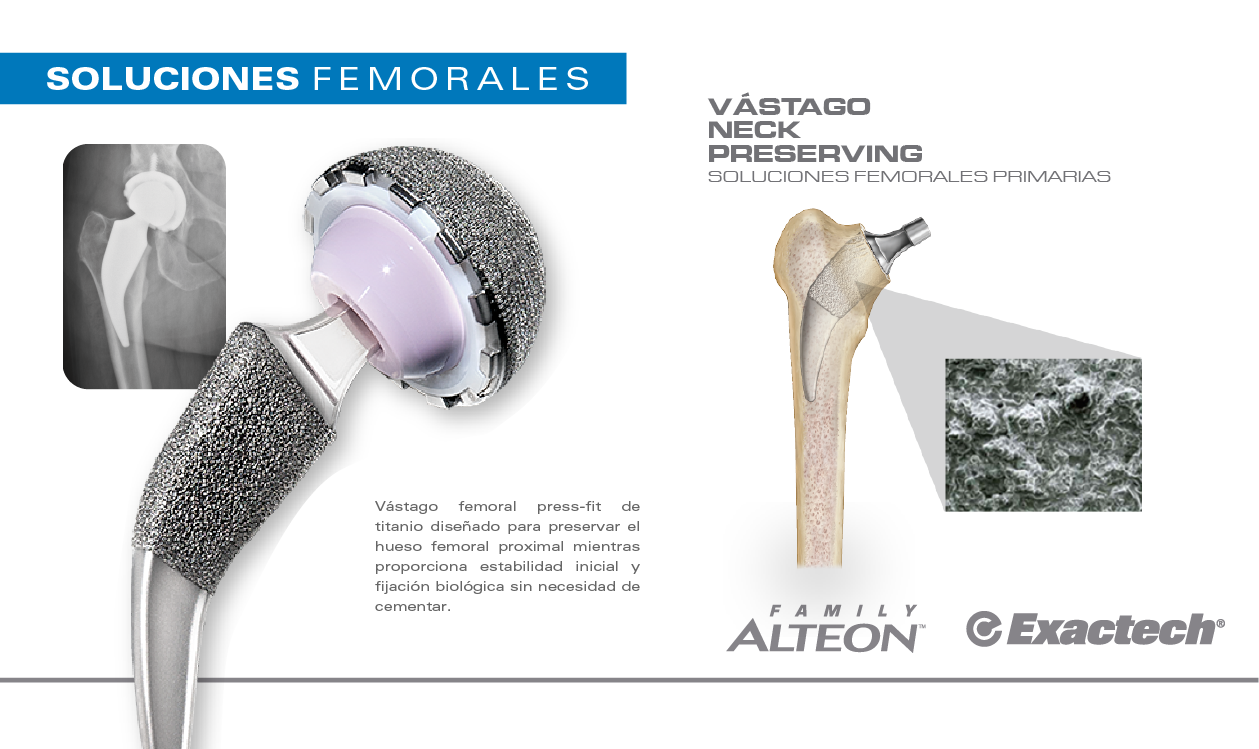 Sub menu Alteon Neck Preserving -02-01