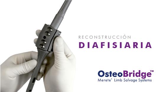 Preview OsteoBridge Diafisiaria-02