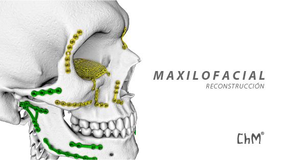 Preview MAXILO-02